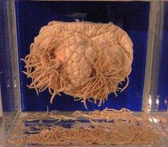 アニサキスに寄生されたイルカの胃.jpg